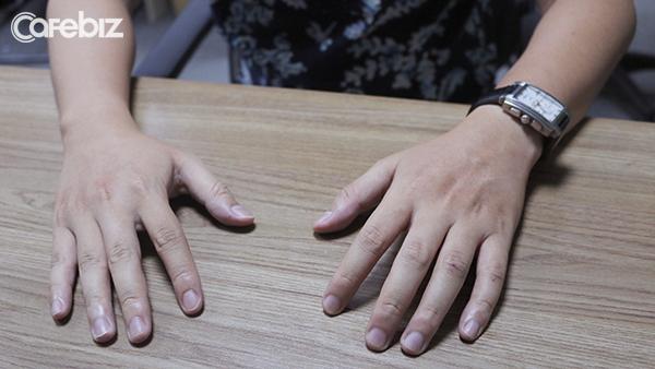 Úp lòng bàn tay