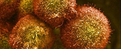 Microsoft đang tham vọng tái lập trình các tế bào ung thư để biến chúng thành các tế bào khỏe mạnh, ảnh: Anne Weston/Wellcome Images