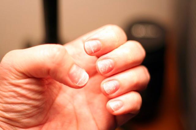 30 dấu hiệu khác nhau trên móng tay có thể cho bác sĩ biết tình trạng sức khỏe của bạn