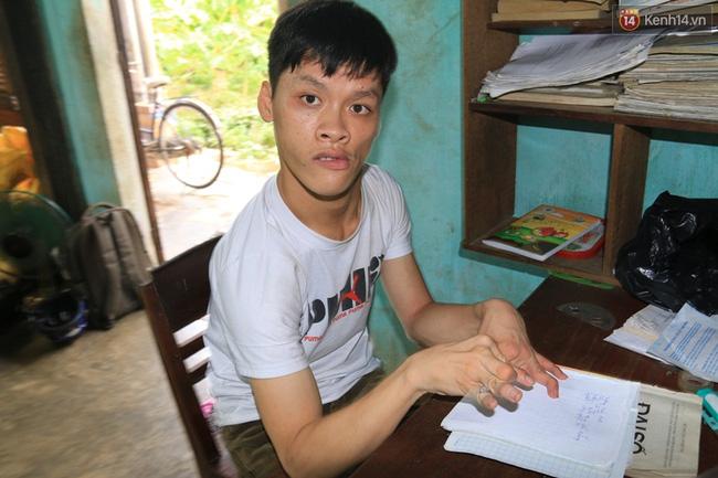 Đôi tay dị tật khiến cho việc cầm bút của Hùng Anh gặp rất nhiều khó khăn