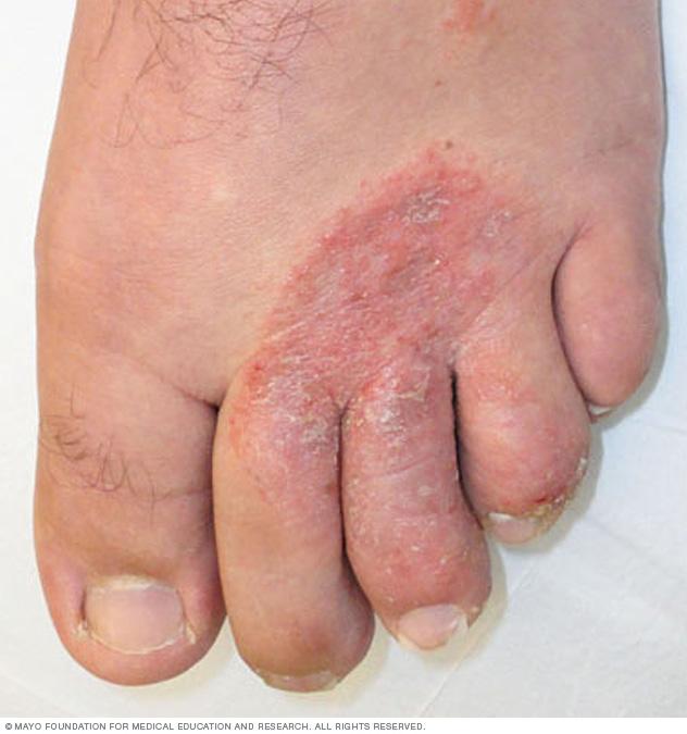 Tác nhân gây ra cái chân lở loét trong hình trên đang sống trong đống chăn bẩn đấy