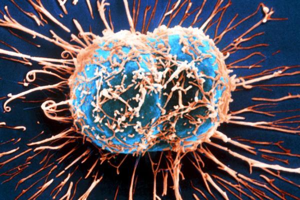 """Tế bào ung thư rất """"láu cá"""", chúng giả vờ nhiễm virus để tự mạnh lên và kháng thuốc điều trị"""
