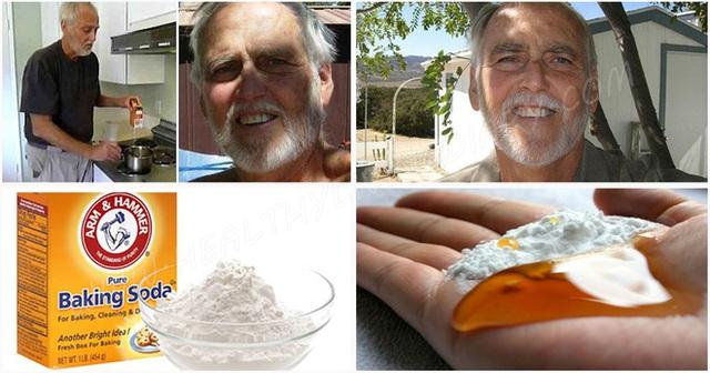 Ông Vernon đã xóa sổ ung thư trong 10 ngày nhờ baking soda và mật mía.