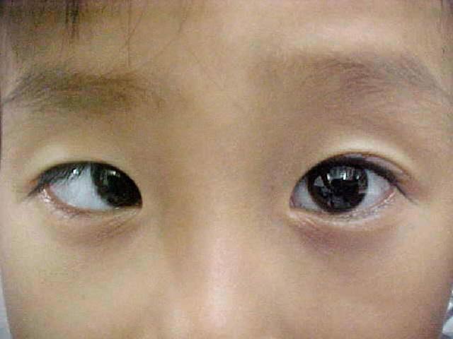 Chứng mắt lác là một trong những nguyên nhân chính gây ra nhược thị