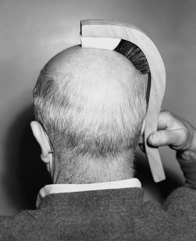 Chiếc lược chống hói đầu