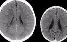 Đây là bộ não của 2 đứa trẻ và lý do làm nên sự khác biệt sẽ khiến tất cả mọi người phải giật mình