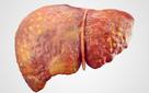 Những dấu hiệu gan bị tổn thương: Hãy khám ngay phòng viêm gan, xơ gan trước khi quá muộn