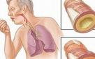 Những người có nguy cơ mắc ung thư phổi