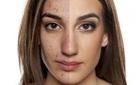 Muốn mặt sạch nhẵn mụn thì ít nhất bạn cũng phải loại bỏ được 4 tác nhân thường gặp này