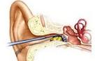 Bác sĩ cảnh báo: Những nguy hiểm không ngờ khi bạn lấy ráy tai