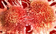 """Tìm thấy hoạt chất khiến tế bào ung thư """"tự sát"""" trong 1 loại dầu ăn có ngay trong nhà bạn"""