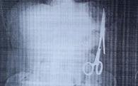 Truy tìm bác sĩ bỏ quên kéo trong bụng bệnh nhân 18 năm
