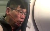 """Cổ phiếu United Airlines """"hồi sinh"""" sau bê bối đẩy khách gốc Việt khỏi máy bay"""
