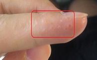 Dấu hiệu trên ngón tay chứng tỏ lục phủ ngũ tạng tích độc tố: Nên biết để thải độc ngay