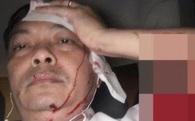 'Sếp' Tập đoàn Trung Nguyên bị đánh chảy máu đầu nhập viện