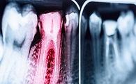 Vũ khí mới diệt sâu răng: 2,3 tỷ người có cơ hội thoát bệnh