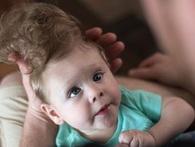 """Sức sống mãnh liệt của em bé có khuôn mặt thiên thần bị bác sỹ nói rằng """"không còn hy vọng"""""""