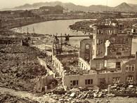 Câu chuyện về nỗi đau đớn kéo dài 7 thập kỷ của nạn nhân vụ đánh bom Hiroshima