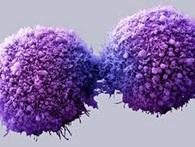 Kiêng đường để diệt ung thư: Ung thư chết hay người bệnh chết?