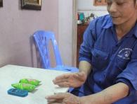 Phút cấp cứu phụ nữ thuê người chặt chân tay