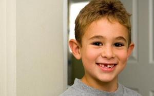 Tại sao chúng ta phải thay răng dù sau đó lại mọc lại y chang?