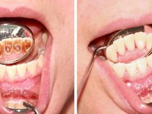 Khỏi đến nha sĩ, chỉ vài nghìn đồng và 5 phút là bạn có thể lấy sạch cao răng để đón Tết