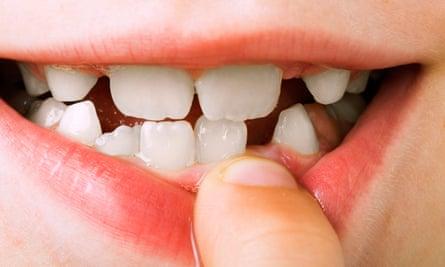 Chuyện lạ: Hàm răng của loài người là một sự tiến hóa lỗi? - Ảnh 1.