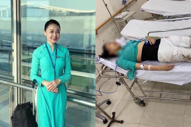 Nữ tiếp viên hàng không bị xe Mercedes tông vỡ xương chậu gần 1 năm về trước: Nằm liệt giường, trải qua 4 cuộc phẫu thuật với thương tật vĩnh viễn 75% - Ảnh 2.