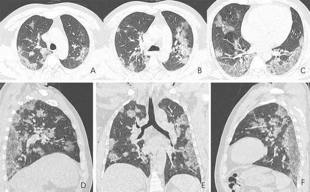 Covid-19 nguy hiểm cả với người trẻ: Chia sẻ của một bác sĩ tuyến đầu cho thấy nó tàn phá phổi người bệnh như thế nào - Ảnh 1.