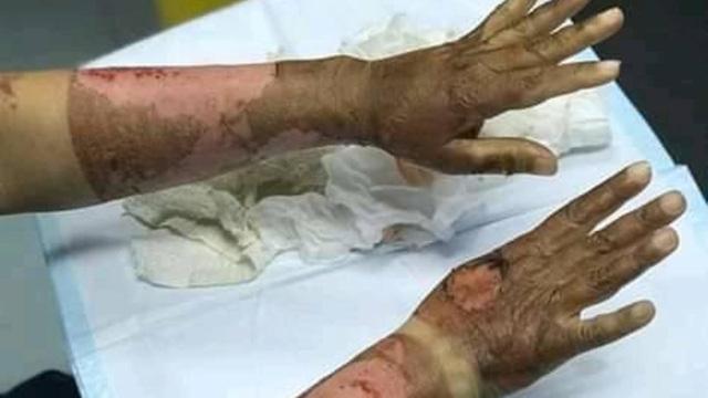 Thực hư chuyện bị bỏng vì cồn sót lại trên da sau khi dùng nước rửa tay khô và những điều cần chú ý để rửa tay an toàn trong mùa dịch Covid-19  - Ảnh 1.
