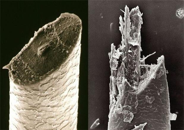 Chùm ảnh kinh dị khi nhìn qua kính hiển vi khiến người gan dạ nhất cũng phải rùng mình sởn gai ốc - Ảnh 7.