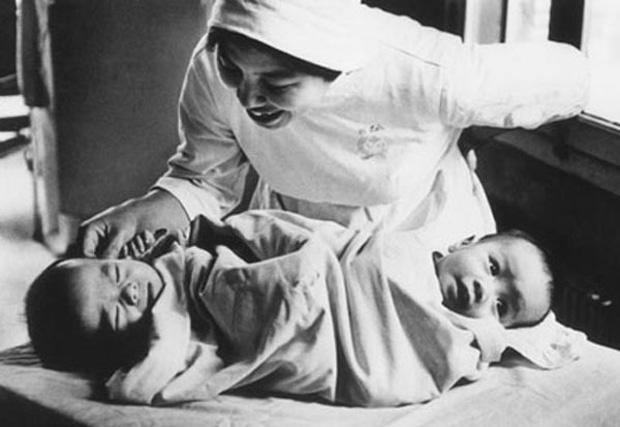 Nhìn lại ca phẫu thuật tách cặp song sinh Việt - Đức 32 năm trước: Ca mổ đi vào lịch sử y học Việt Nam - Ảnh 4.