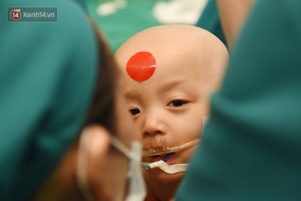 ẢNH: Khoảnh khắc xúc động trong suốt 12 tiếng phẫu thuật giúp Trúc Nhi - Diệu Nhi có được hình hài nguyên vẹn - Ảnh 8.