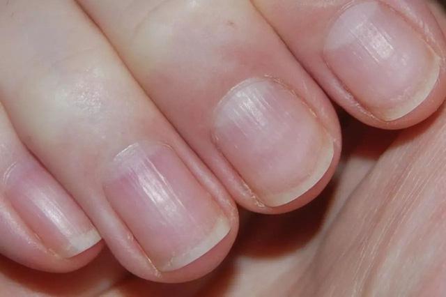 3 dấu hiệu bất thường ở bàn tay cho thấy dạ dày đang kêu cứu, ở độ tuổi nào cũng cần làm ngay 4 việc để ngăn cản ung thư hình thành  - Ảnh 3.