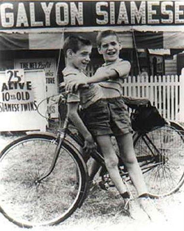 Nhìn lại hành trình 68 năm đồng hành của cặp sinh đôi dính liền sống lâu nhất thế giới: Sinh ra cùng nhau, chết đi cũng không rời - Ảnh 2.