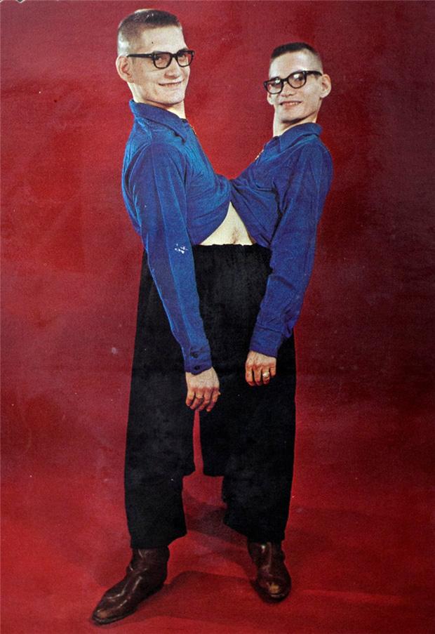Nhìn lại hành trình 68 năm đồng hành của cặp sinh đôi dính liền sống lâu nhất thế giới: Sinh ra cùng nhau, chết đi cũng không rời - Ảnh 3.