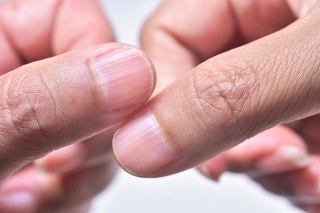 """4 dấu hiệu trên móng tay """"chỉ điểm"""" trong người bạn đang có mầm bệnh  - Ảnh 3."""