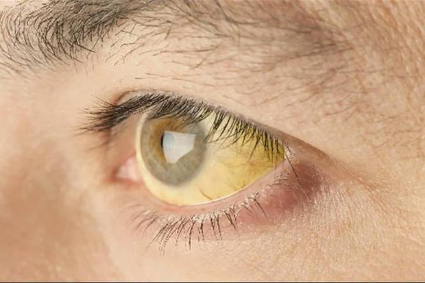 2 dấu hiệu bất thường ở mắt sẽ giúp bạn phán đoán nguy cơ ung thư từ giai đoạn đầu  - Ảnh 1.