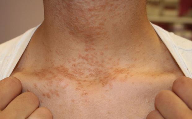 3 thay đổi trên cổ có thể là dấu hiệu sớm của bệnh ung thư mà bạn không nên chủ quan bỏ qua - Ảnh 2.