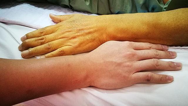 Căn bệnh ung thư có tỉ lệ mắc bệnh và tử vong cao bằng nhau: Cơ hội sống chỉ dài 4-7 tháng  - Ảnh 1.