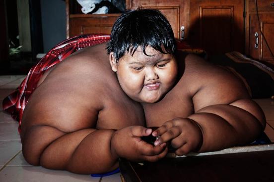 Từng được coi là em chã nặng nhất thế giới, cậu bé béo đến không đi học nổi giờ đã có ngoại hình thay đổi đáng kinh ngạc sau 5 năm  - Ảnh 2.