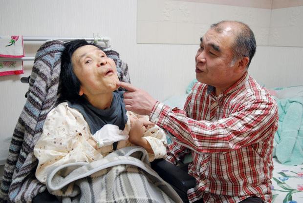 Vụ tấn công bằng khí độc sarin chấn động lịch sử nước Nhật: Ký ức đau thương kéo dài hơn 25 năm, 6000 người vẫn chịu di chứng - Ảnh 1.