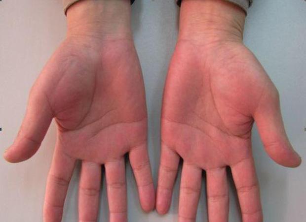 Sau khi uống rượu bia, nếu 2 bộ phận sau trên cơ thể đỏ lên thì chứng tỏ gan của bạn đang có vấn đề đấy - Ảnh 2.