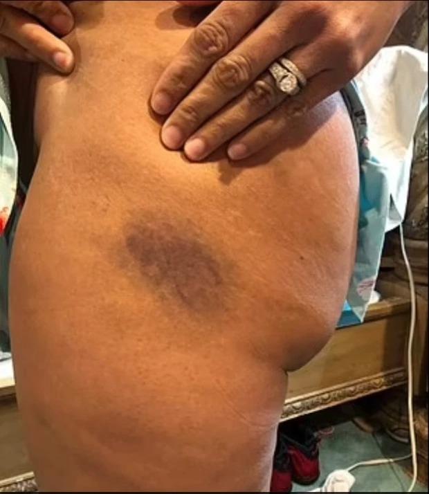 Rúng động: Nữ cảnh sát Mỹ phơi bày tội ác kinh tởm trong 5 năm làm nghề, bị đồng nghiệp cưỡng hiếp tập thể và đày đọa tinh thần, bằng chứng in hằn trên cơ thể  - Ảnh 2.