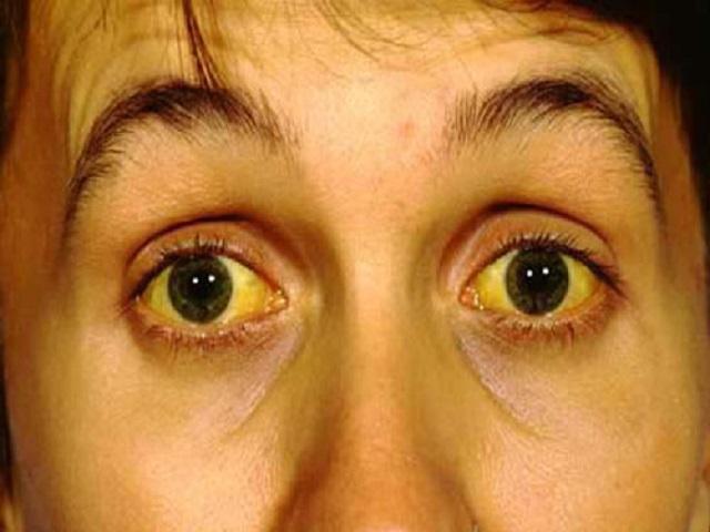 Tình trạng vàng da, vàng mắt là dấu hiệu dễ nhận thấy của bệnh gan.