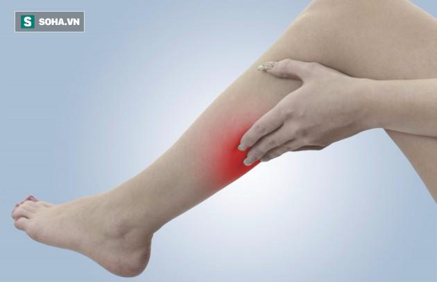 Đau vùng bắp chân nhiều khi không chỉ bắt nguồn từ nguyên nhân căng cơ như chúng ta vẫn nghĩ. (Ảnh minh họa).