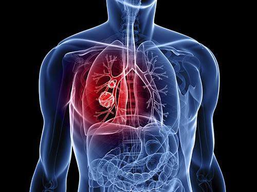 Ung thư phổi là căn bệnh nguy hiểm nhất về đường hô hấp. (Ảnh minh họa).