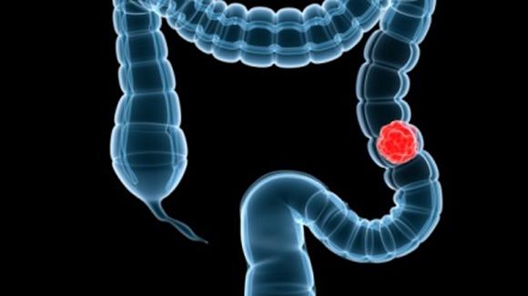 Việc chú ý quan sát tình trạng phân sau mỗi lần đại tiện sẽ giúp người bệnh phát hiện ung thư ruột kết kịp thời. (Ảnh minh họa).