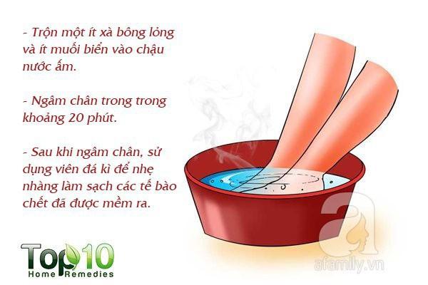 7 mẹo hàng đầu giúp bạn không bị nhiễm trùng và nứt gót chân trong mùa đông này - Ảnh 3.
