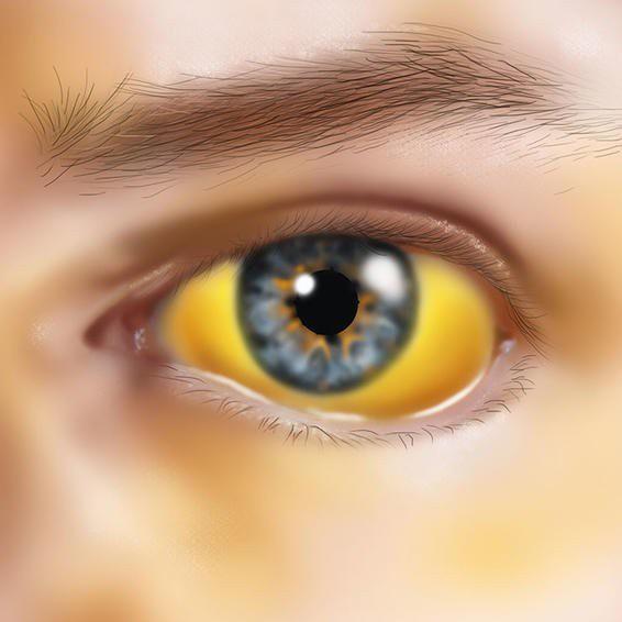Gan bị bệnh sẽ càng làm bilirubin xuất hiện nhiều máu, từ đó dẫn đến da và mắt bị vàng.